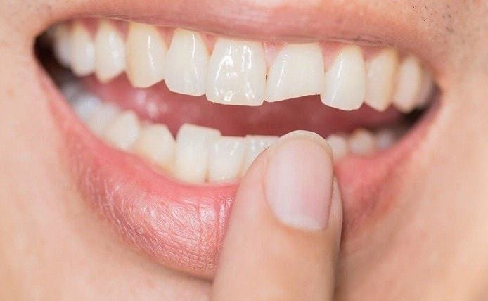 6 Cosmetic Dentistry Procedures That Are Perfect to Fix All Your Dental Problems